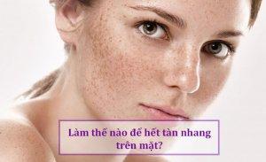 Nám da là gì? Làm sao để trị nám da hiệu quả?